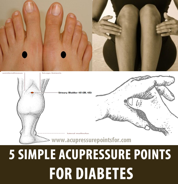 5 SIMPLE ACUPRESSURE POINTS FOR DIABETES