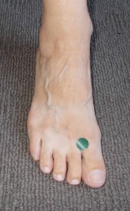toes-acupressure-points-for-anxiety